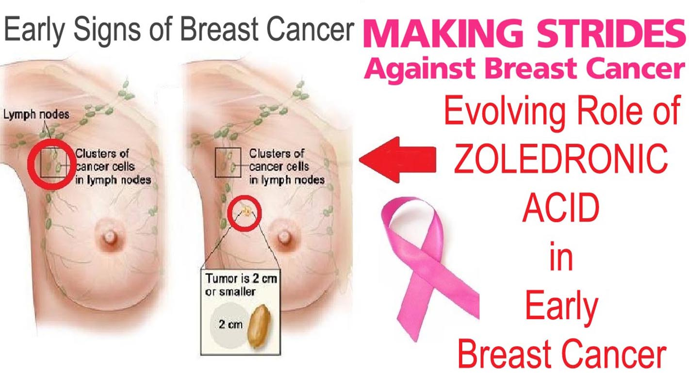 Evolving Role Of Zoledronic Acid In Early Breast Cancer